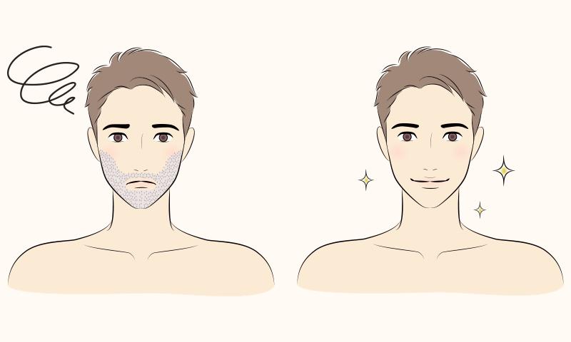 男性が髭を脱毛したイメージ
